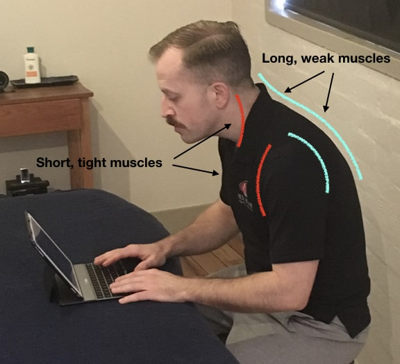 neck pain causes posture