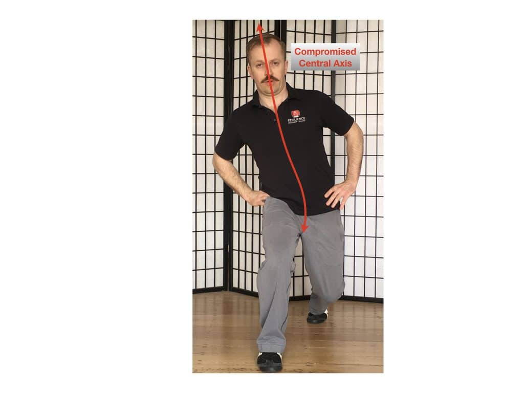 Straight lunge with collapsed CLA lower back pain causes